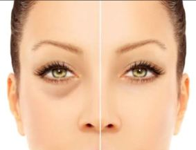Dark circles and how to get rid of them
